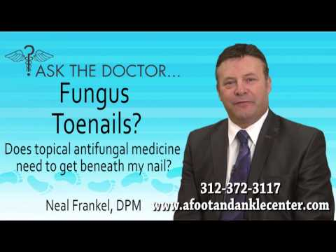 Does Topical Antifungal Medicine Need To Get Beneath My Nail? Chicago IL – Podiatrist