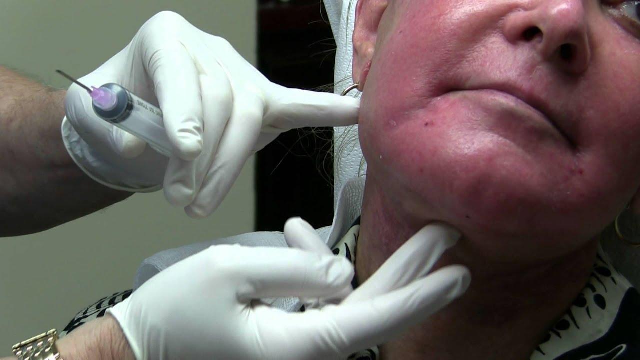 Aspirating facial seroma in facelift