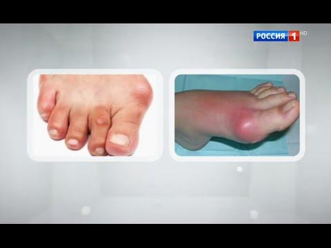 Бурсит - симптомы, лечение, профилактика, причины, первые