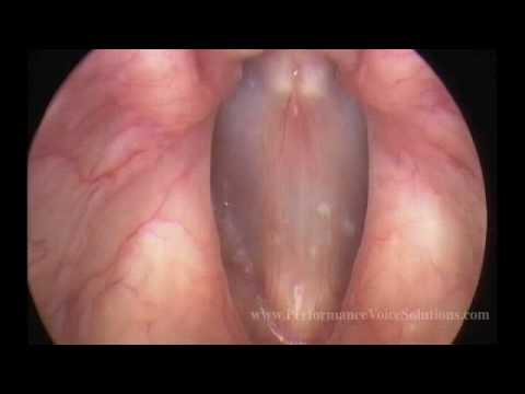 Video Stroboscopy of Vocal Cords