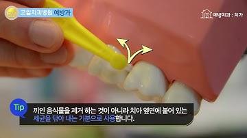 치간칫솔 구강용품 사용방법 설명 동영상 _굿윌치과병원