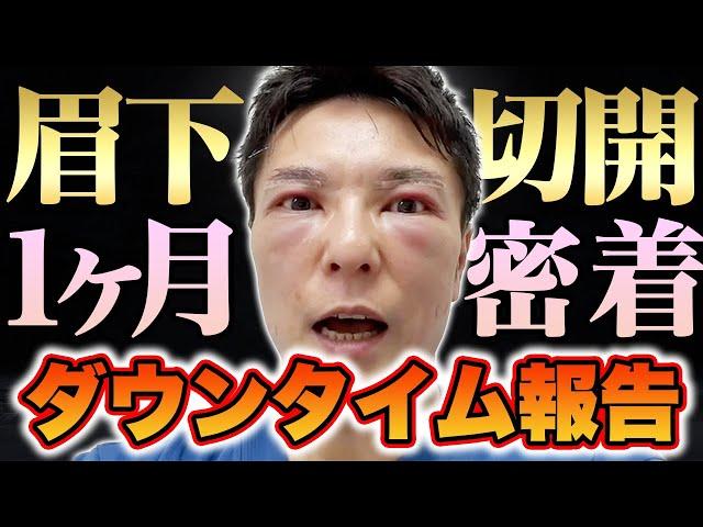 【リアル密着】眉下切開手術後、1ヶ月間のダウンタイム報告【ビフォーアフターあり】
