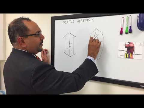 What Is Rectus Diastasis? Lotus Cosmetic Surgery CT | Dr. Nasir Plastic Surgeon Westport | New Haven