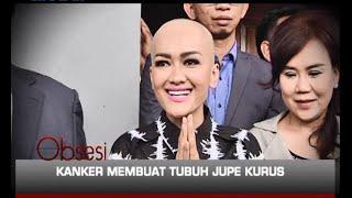 Kanker serviks yang diderita Julia Perez alias Jupe belakangan ini menyebabkan kakinya membengkak. S.
