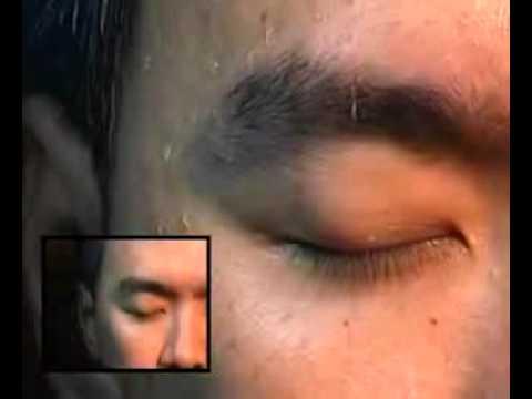 паразиты в коже человека фото