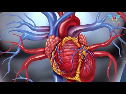 Coronary Angiography: A Test for Your Heart