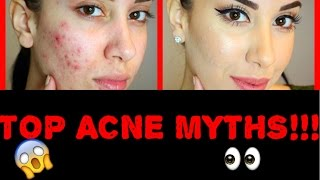 Biggest Acne MYTHS !!! (From someone who KNOWS)