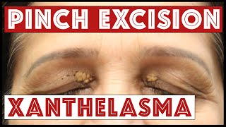 Removing Xanthelasma on the Upper and Lower Eyelids