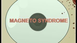 Magneto Syndrome pt.2 Walkthrough