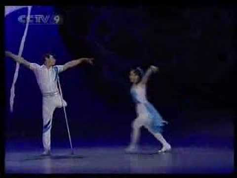 One leg man and one arm woman dance
