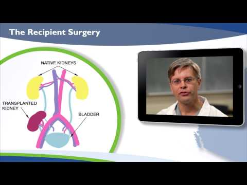 Introduction to Kidney Transplant: A Step by Step Process