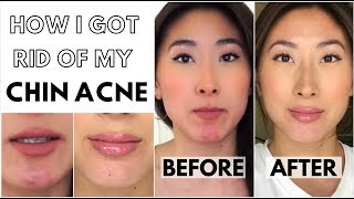 How I Cleared Up My Chin Acne | My Skincare Secret - FOREO LUNA 3 Review