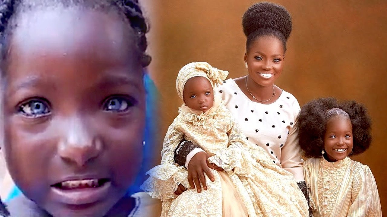 Download Sad Story of Nigerian Woman And Her Kids With Blue Eyes That Will Make You Cry