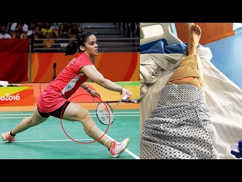 Saina Nehwal shares post-surgery pic, will not play for 4 months |Oneindia News