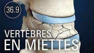 Ostoporose : le remde peut tre pire que le mal