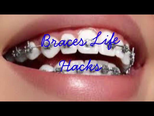 Braces Life Hacks