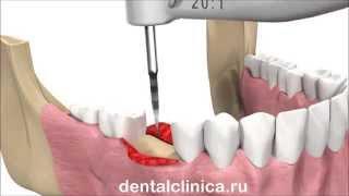 Стоматология лечение зубов имплантация европейское качество European Clinic of Aesthetic Dentistry(Клиника European Clinic of Aesthetic Dentistry in Budapest