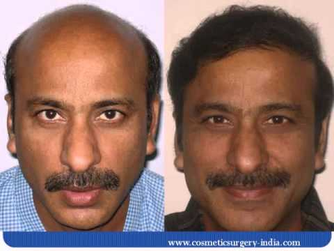 Hair transplant video in mumbai