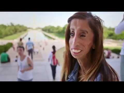 Người phụ nữ xấu nhất thế giới -  Lizzie Velasquez