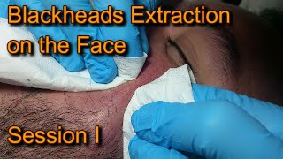 Blackheads extraction on the Face Session I