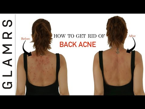 How to get rid of acne on your back naturally