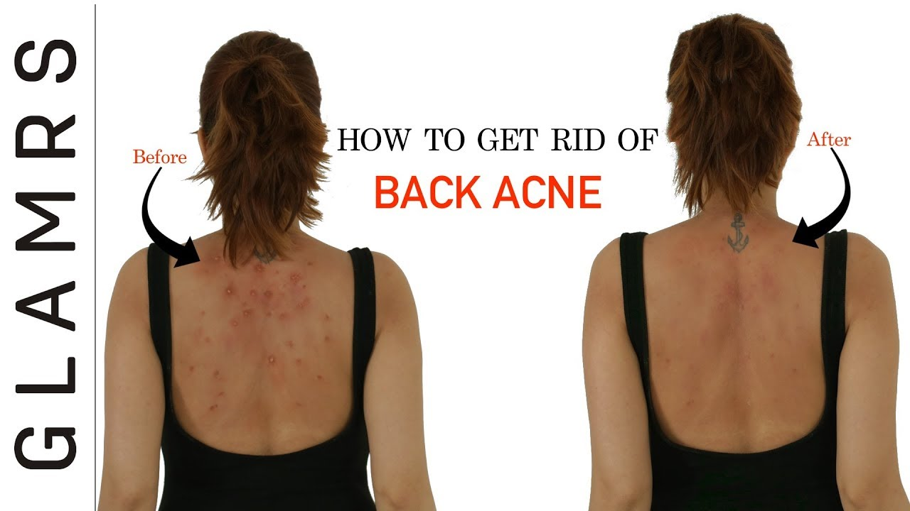 How To Get Rid of Back Acne the Natural Way | Effective Home Remedies