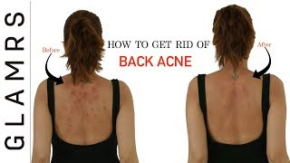 How To Get Rid of Back Acne the Natural Way  Effective Home Remedies
