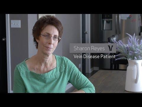 Sharon's Story - Varicose Veins - Vein Clinics of America