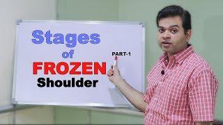 Cara Terapi Frozen Shoulder/ Injuri Shoulder.