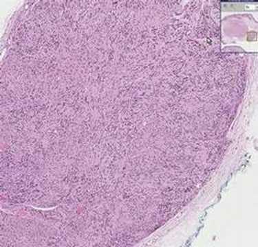 Histopathology Skin--Schwannoma