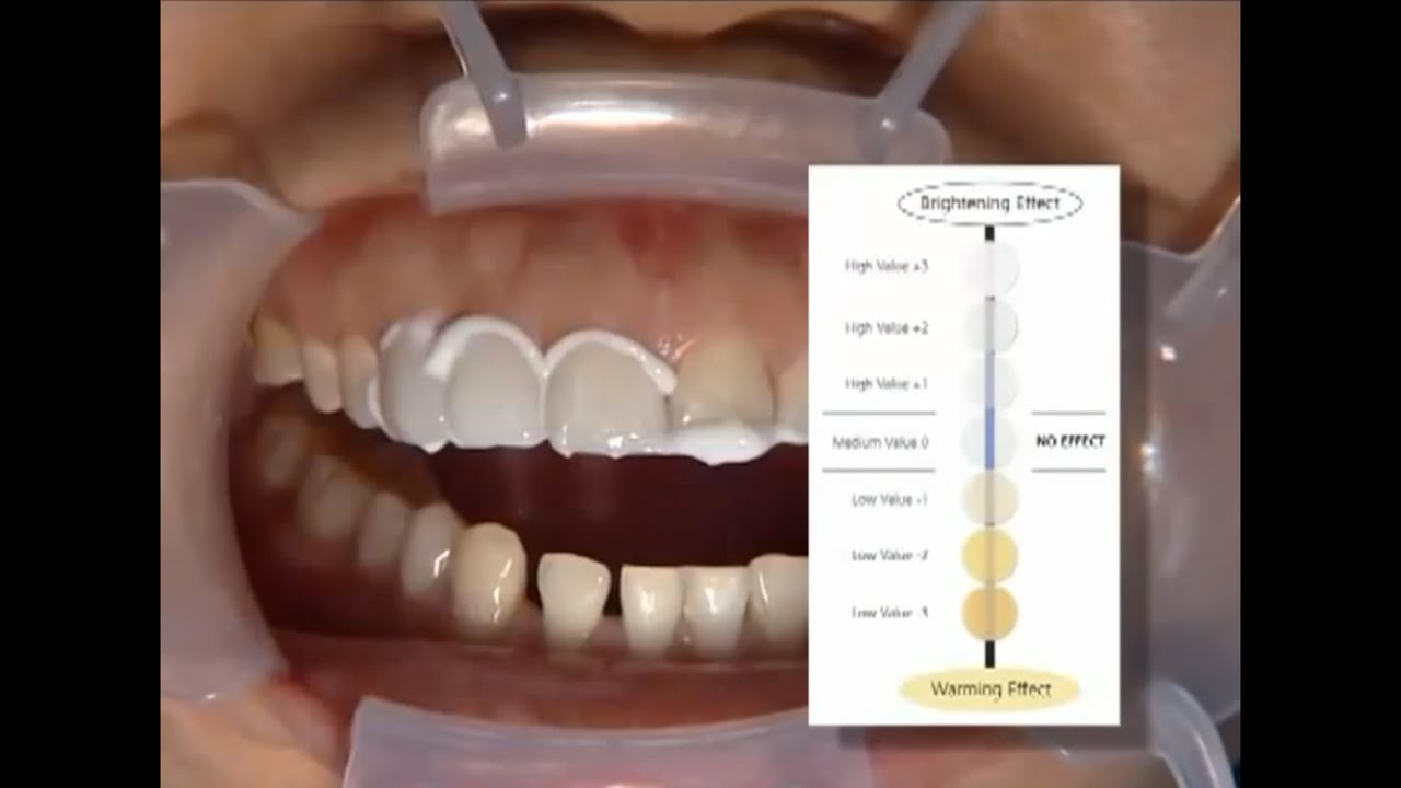 Glidewell Clinical Tutorial Shade Adjustable Veneers