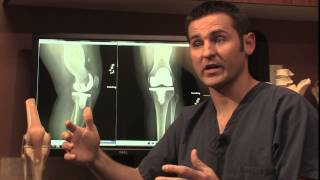 Knee Replacement Surgery - Dr Nathan Cafferky