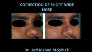 Rhinoplasty Kerala| Best Nose Cosmetic surgery @Cochin Thumbnail