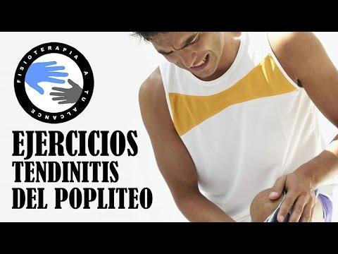 ▷Qué es la Tendinitis poplítea: como curarla, estiramientos y ...