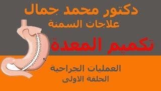 د.محمد جمال-علاجات السمنة-الحلقة الاولى-العمليات الجراحية-اسرع طرق انزال الوزن