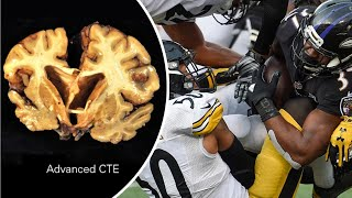 NFL concussions: 96% of former NFL players tested had CTE brain disease - Compilation