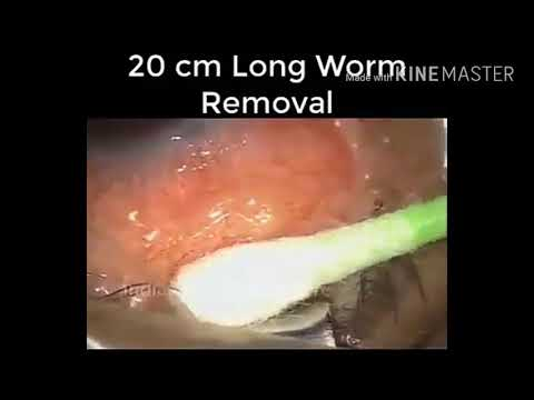 20 cm long worm Removal from eyes....