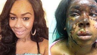 Lasting Pain Of Acid Attack Victim