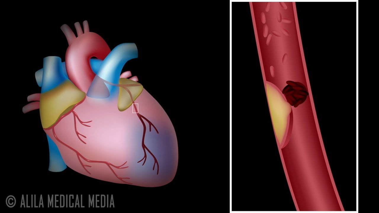 Myocardial Infarction and Coronary Angioplasty Treatment, Animation.