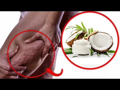 how-to-get-rid-of-cellulite---7-home-remedies-for-cellulite-reduction-(how-to-reduce-cellulite)