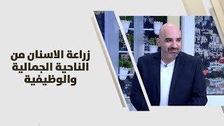 د. خالد عبيدات - زراعة الاسنان من الناحية الجمالية والوظيفية