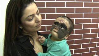Мама американской девочки с родимым пятном на лице показала ребенка после операции в Краснодаре.