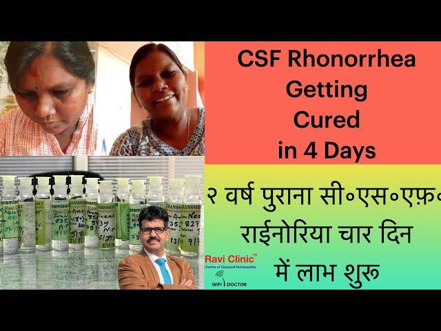 CSF Rhinorrhea Case from Bengaluru getting Cured in 4 days Dr Ravi Singh