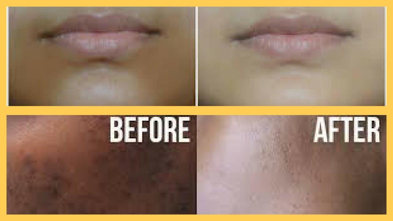 How To Remove Dark Spots On Upper Lips | Lipstutorial org