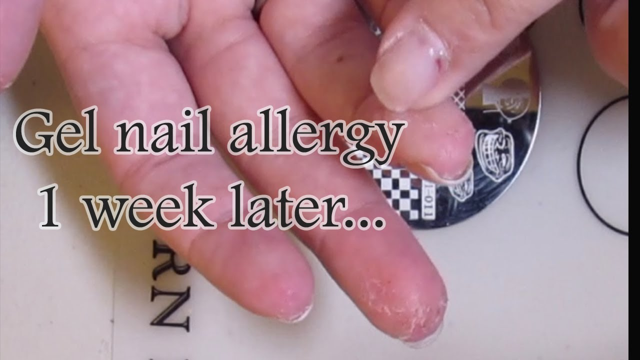 Update Of My Gel Allergy 1 Week Later Fine Nail Fantasy