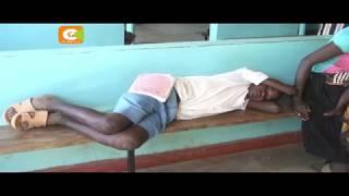 Malaria yaua watu 40