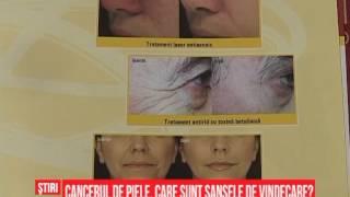 se poate vindeca cancerul de piele)