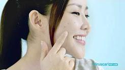 hqdefault - Hiruscar Post Acne Gel Singapore