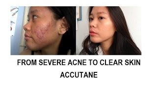 Buy accutane