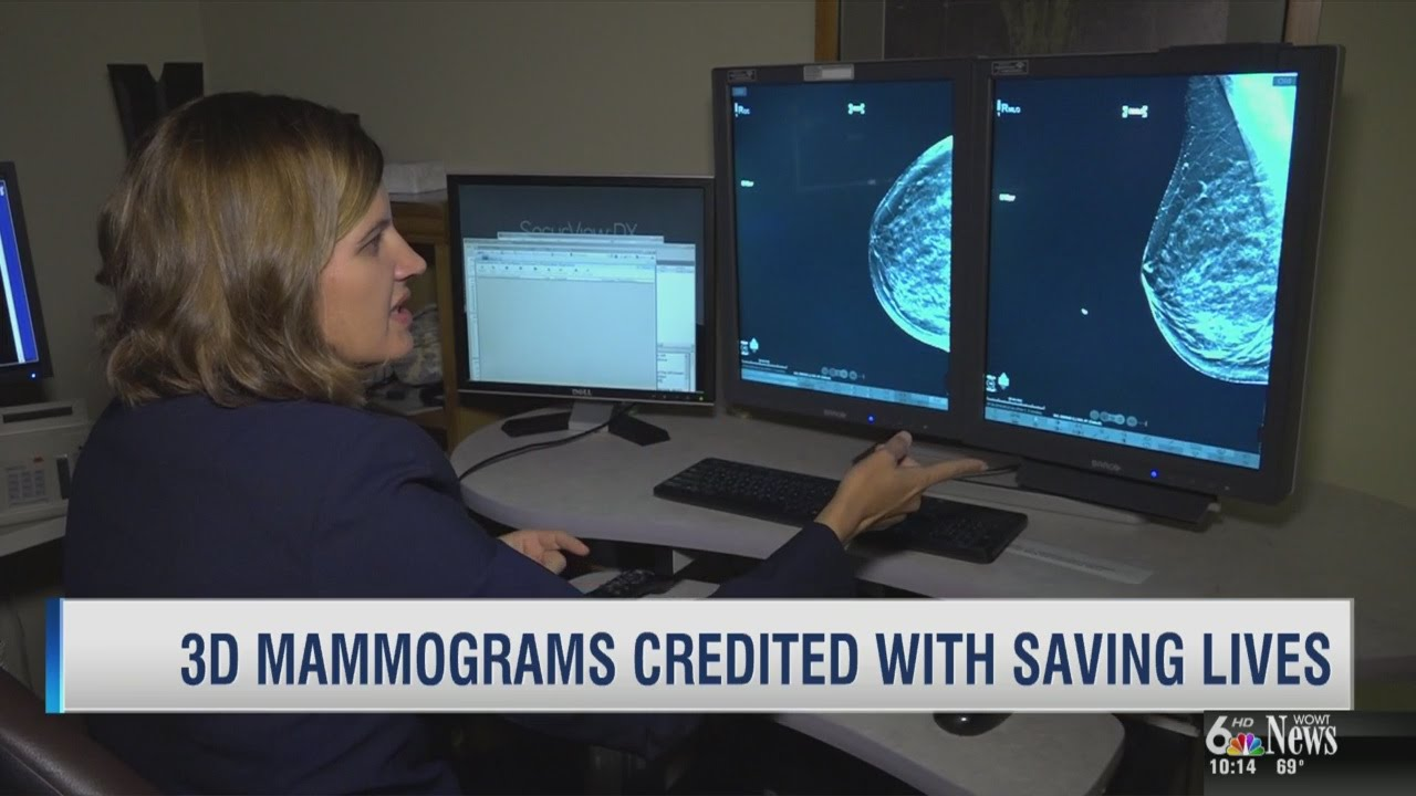 Life Saving 3D Mammograms